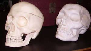 Picture of skulls in plaster and in plastic